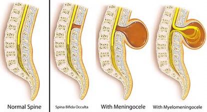 Spina bifida : A menace or a myth' – Health blog