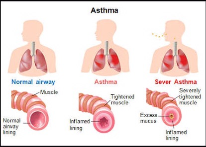 how to know if you have asthma