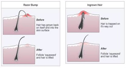 Ingrown Hair Vs Herpes Www Pixshark Com Images